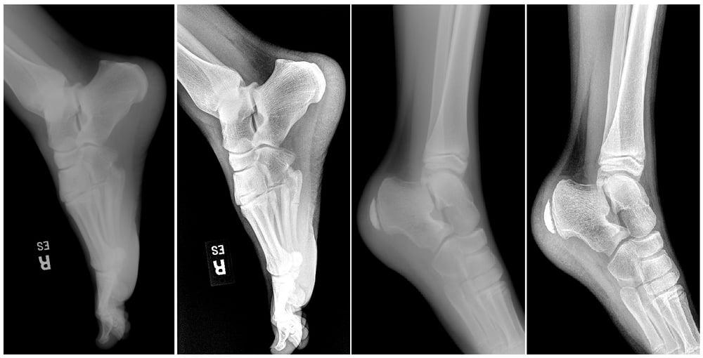 foot pics-1