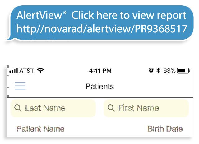 AlertView Alert Example