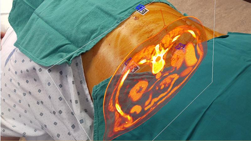Spine Live Back Surgery